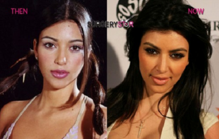 kim-kardashian-surgery